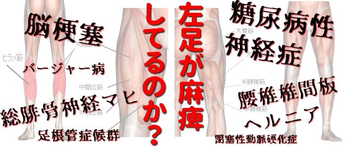左足がおかしい(麻痺してる?)