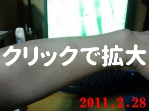 2月28日湿疹の状態