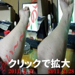 アレルギー湿疹2月28日