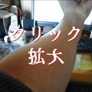 アレルギー湿疹 通院3回目 アレルギー検査採血 少しはマシになった
