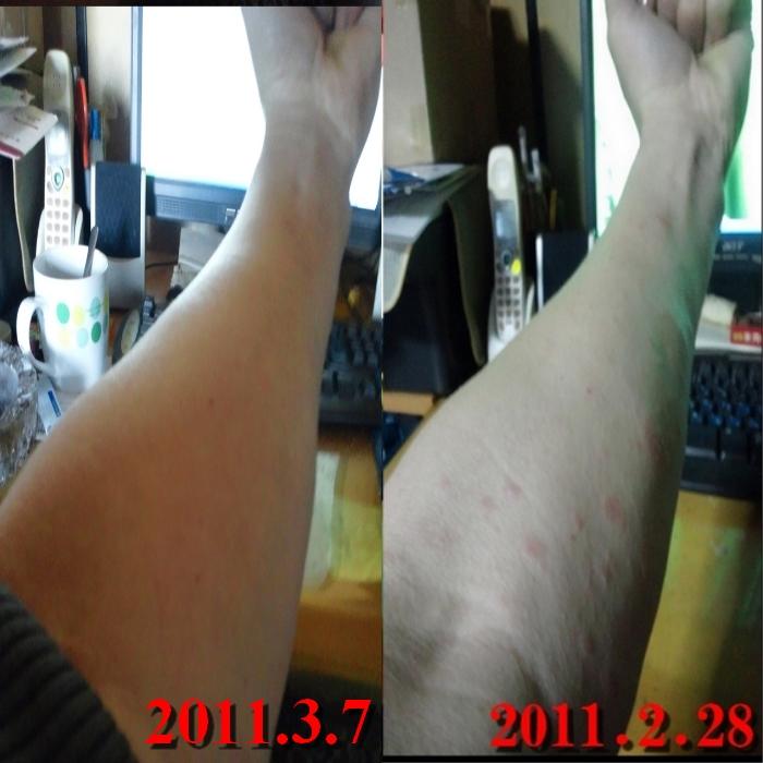 アレルギー湿疹 通院3回目 アレルギー検査採血 治ってきた