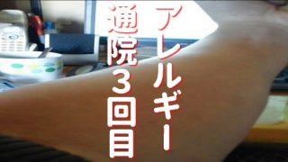 アレルギー湿疹 通院3回目 アレルギー検査採血